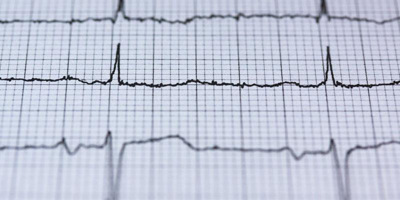 OTKUCAJI SRCA: Što o vašem zdravlju govori srčani ritam i kako znati koji je normalan